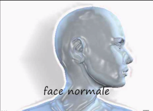 Face anomalies verticales